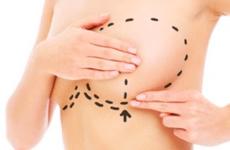 刘春军医生原创:乳房下垂整形手术常见问题与解答-刘春军